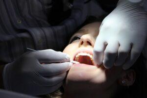 fog implantatum